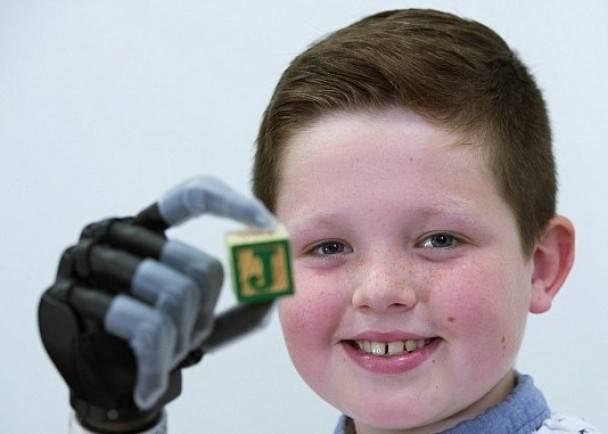 英9岁童装仿生手 成全球最年轻佩戴者
