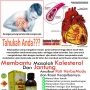 Cara Alternatif Atasi Masalah Kolesterol Dalam Darah.