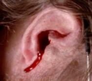 how to stop ear bleeding