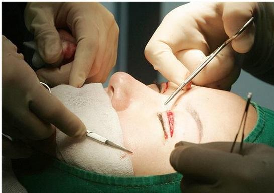 Jalani Pembedahan Kosmetik