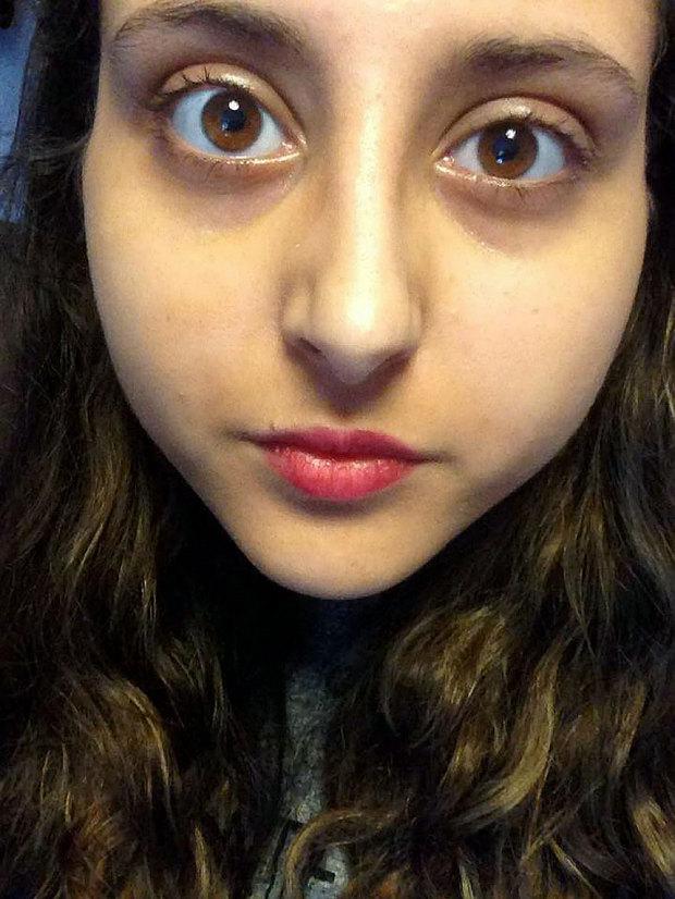 Gadis Nyaris Buta Parasit Kanta Lekap Masuk Mata