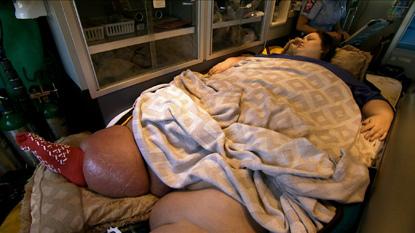 6 Penyebab Bau Badan yang Jarang Disadari