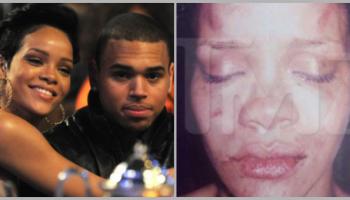 打爆Rihanna的脸! Chris Brown:我一拳把她的嘴唇打伤