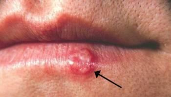 亲个吻或共用唇膏,都有可能中疱疹!