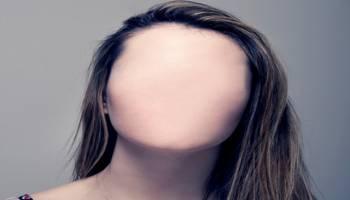 """常记不住人家的长相,原来这是一种""""脸盲症""""?"""