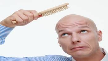 秃头不是自然现象,男性年轻早秃也是病