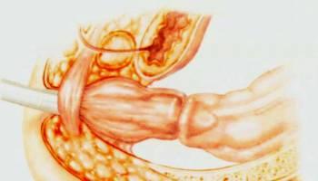 拥有胆结石病史  罹患右结肠癌机率高出2倍!