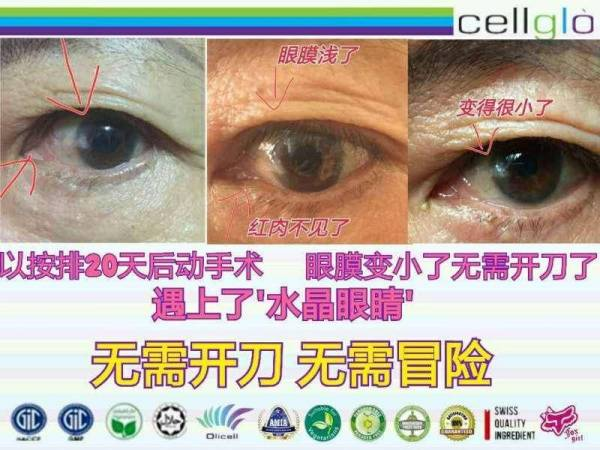 """Cellglo Crystal Eyes""的图片搜索结果"