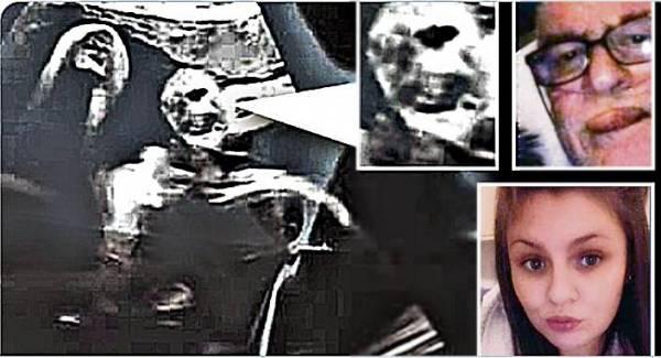 超音波照出现死去爷爷笑脸 旁边有长发黑影...孕妇吓坏:是我妈