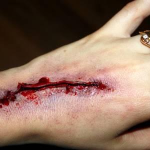 吃酱油伤口会留疤?其实要预防伤口留疤,真正做法是这样……