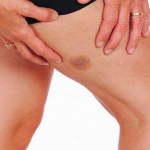 为什么身上经常无故瘀青?小心是健康向你拉警报