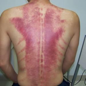 刮痧不可频密,小心血管纤维化