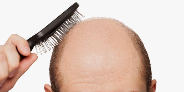 """""""鬼剃头""""能否重长头发? 有数种方法可治疗!"""