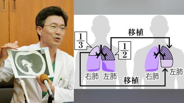 """半个加半个凑成一个肺  世界首宗""""二合一""""驳肺移植!"""