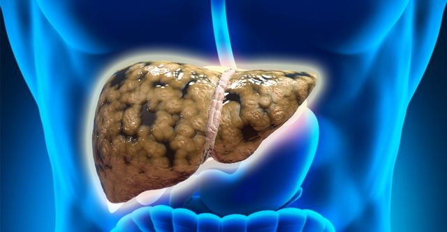 """营养过剩小心脂肪肝  肝硬化可能是""""吃""""出来的!"""