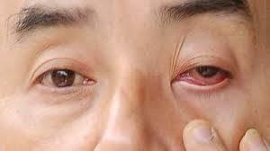 """""""别看红眼的人,会被传染!"""" 红眼症真的会从眼神接触传染?"""