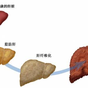 脂肪肝不是肥胖那么简单  它会让你得肝癌!