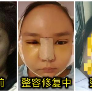 """韩国整容又怎样?泰网红公开脸肿扎绷带""""猪头""""样"""