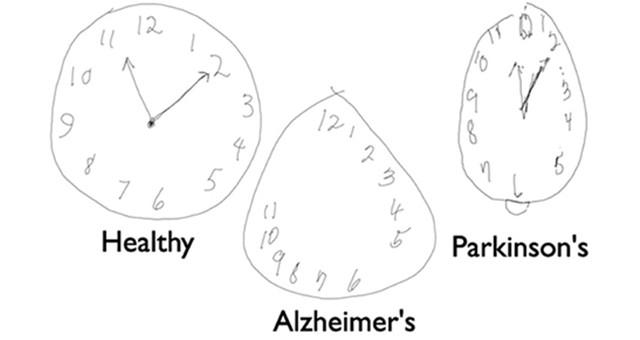 用画钟测试辨识神经认知障碍!这些就是原因所致!