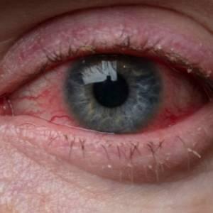 """别以为眼睛不舒服滴眼药水就没事!若2个症状出现有可能是""""眼癌""""!"""