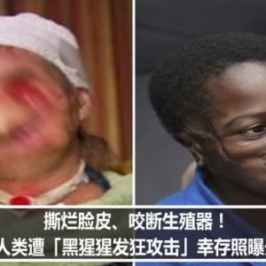 撕烂脸皮、咬断生殖器! 人类遭「黑猩猩发狂攻击」幸存照曝光