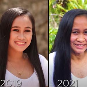 16岁菲律宾少女迅速衰老成60岁老人的脸,寻遍医生后找出了心酸病因...