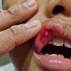 Bengkak Berdarah Bibir Budak Darjah Satu Ditampar Cikgu Sekolah Agama