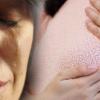 Zalimnya Suami, Ugut Cerai Kalau Isteri Buat Pembedahan Buang Kanser