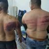 4 Ditahan Kes Lelaki Dipukul Majikan Kerana Berpuasa