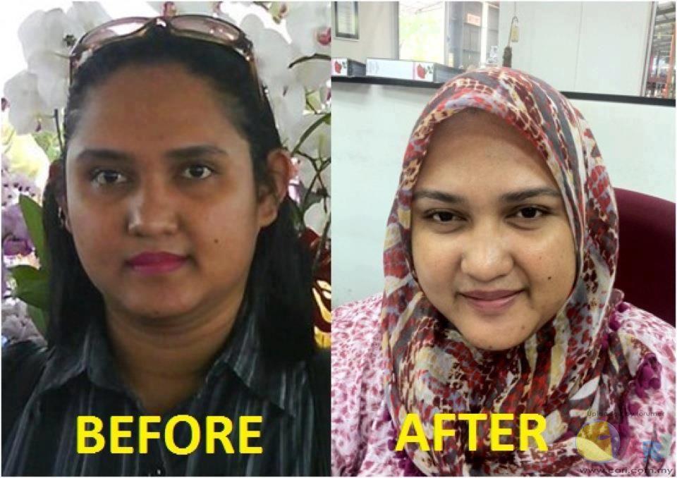 Kulit bertambah cerah selepas menggunkan Nour Ain Skincare