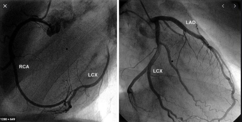 Normal Coronary Angiography.jpg