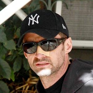 Pelakon X-Men, Hugh Jackman Dedah Punca Terkena Kanser Kulit