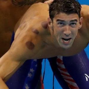 'Rawatan Baharu' Menjadi Trending Di Rio 2016, Rupanya Adalah Bekam