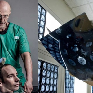Pembedahan Pemindahan Kepala Manusia Pertama Di Dunia Bakal Jadi Kenyataan