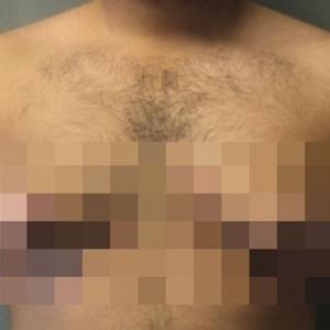 Makin Ramai Lelaki Lakukan Pembedahan Kecilkan Payudara