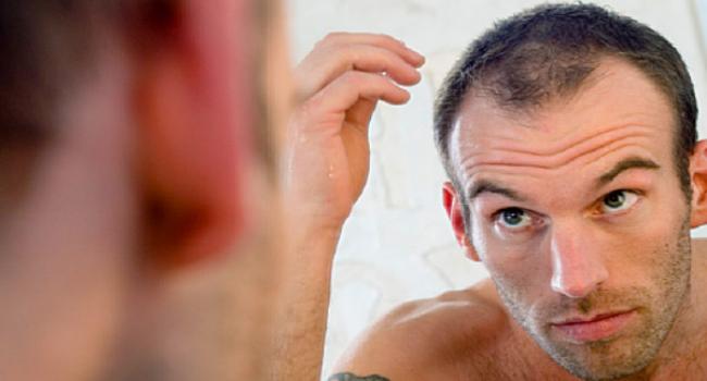 Gaya Rambut Botak 3