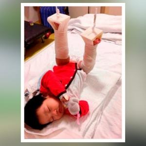 Bayi Patah Tulang Paha, Bapanya Mahu Pengasuh Didakwa