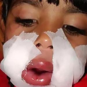 Pipi Koyak, Budak 3 Tahun Parah Mercun Meletup Dalam Mulut