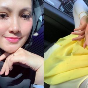 Sherry Ibrahim Nafi Buat 'Plastic Surgery' - Jadi Lebih Lawa