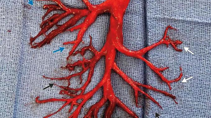 Maut Selepas Batuk Kuat Hingga Tersembur Serpihan Paru-paru