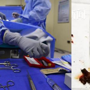 20 Tahun 'Bawa' Berus Gigi Dalam Perut Lepas Gagal Bunuh Diri