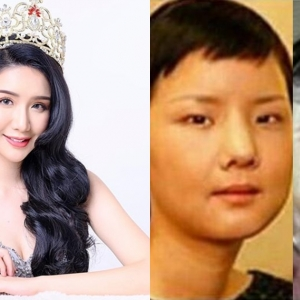 Miss International Malaysia Bengang Dituduh Buat Pembedahan Plastik