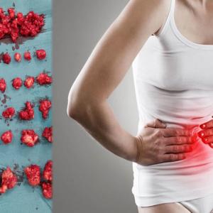 """Hampir 100 Ketul Ketumbuhan Fibroid Patut Buang Rahim, Tapi..."" -   Tindakan Pakar Sakit Puan Dipuji"