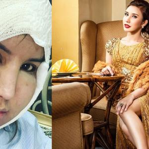 Safiey Illias Bakal Buat Pembedahan Kecilkan Pipi Di Klinik Rawatan Rambut?
