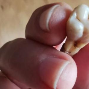 Isteri Takut Kena Cerai Sebab Tak Nak Simpan Gigi Orang Mati